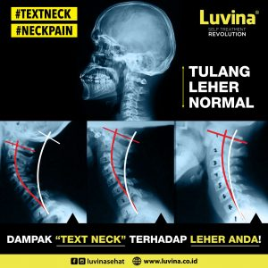 BENDED NECK BONE BECAUSE OF THE FREQUENTLY USING OF SMARTPHONE